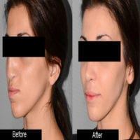 blepharoplasty-and-otoplasty.jpg